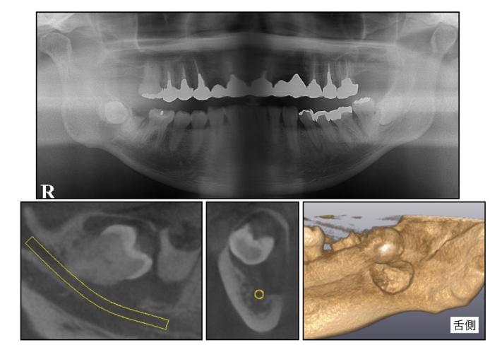 舌側の下顎骨が吸収している症例