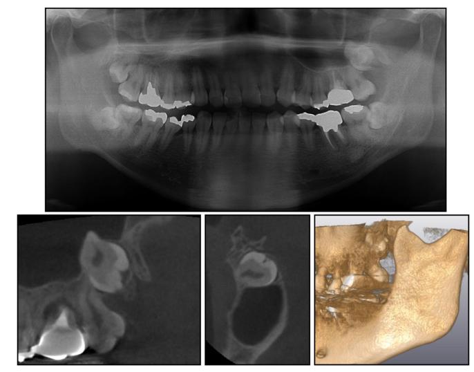 上顎洞に迷入のリスク
